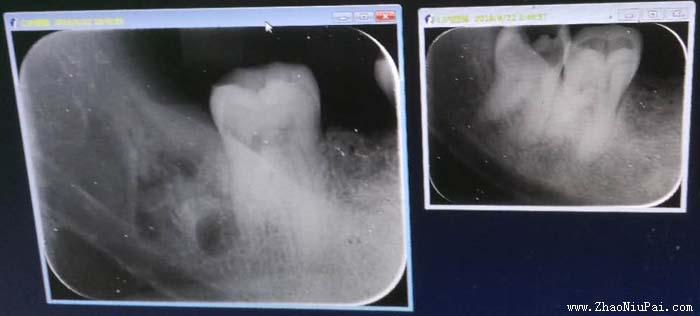 拔牙前后X光片